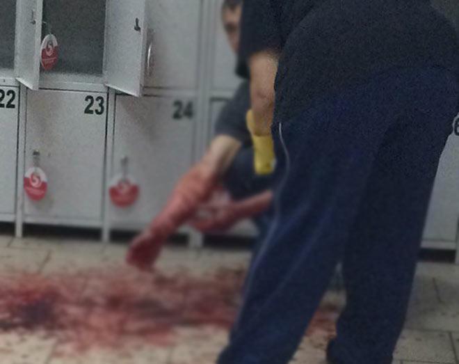 ВНижнекамске магазинный мошенник наглазах у гостей вскрыл себе вены