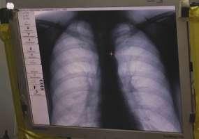 В Нижнекамске за неделю 32 человека заболели пневмонией