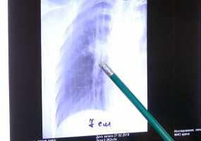 В нижнекамском противотуберкулезном диспансере озвучили статистику отказов от прививок