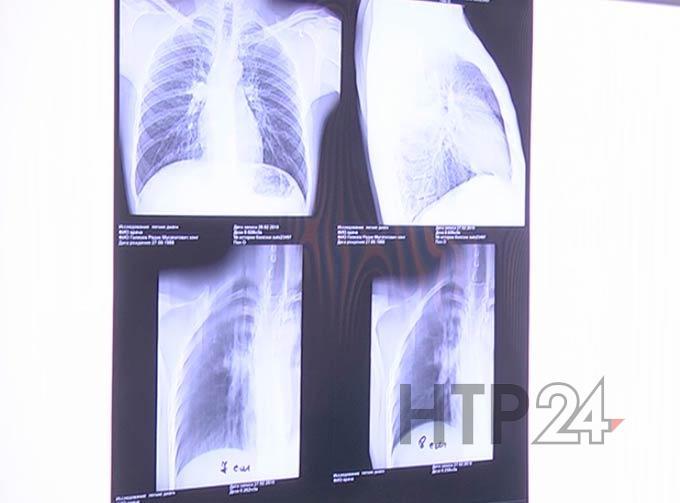 В одной из школ Самары дети заразились туберкулёзом